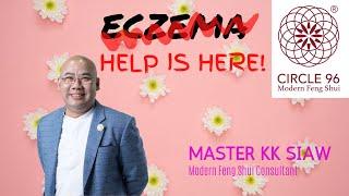 Say Bye-Bye to Eczema!