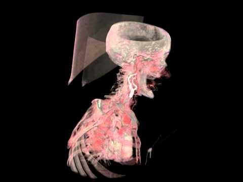 Carotid artery segmentation