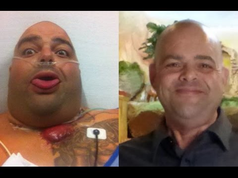Episode 94: Thyroid Cancer, Lung Cancer, 39 Surgeries and Massive Weight Gain