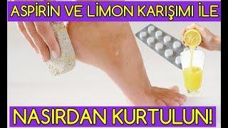 Aspirin ve limon karışımı ile nasırdan kurtulun