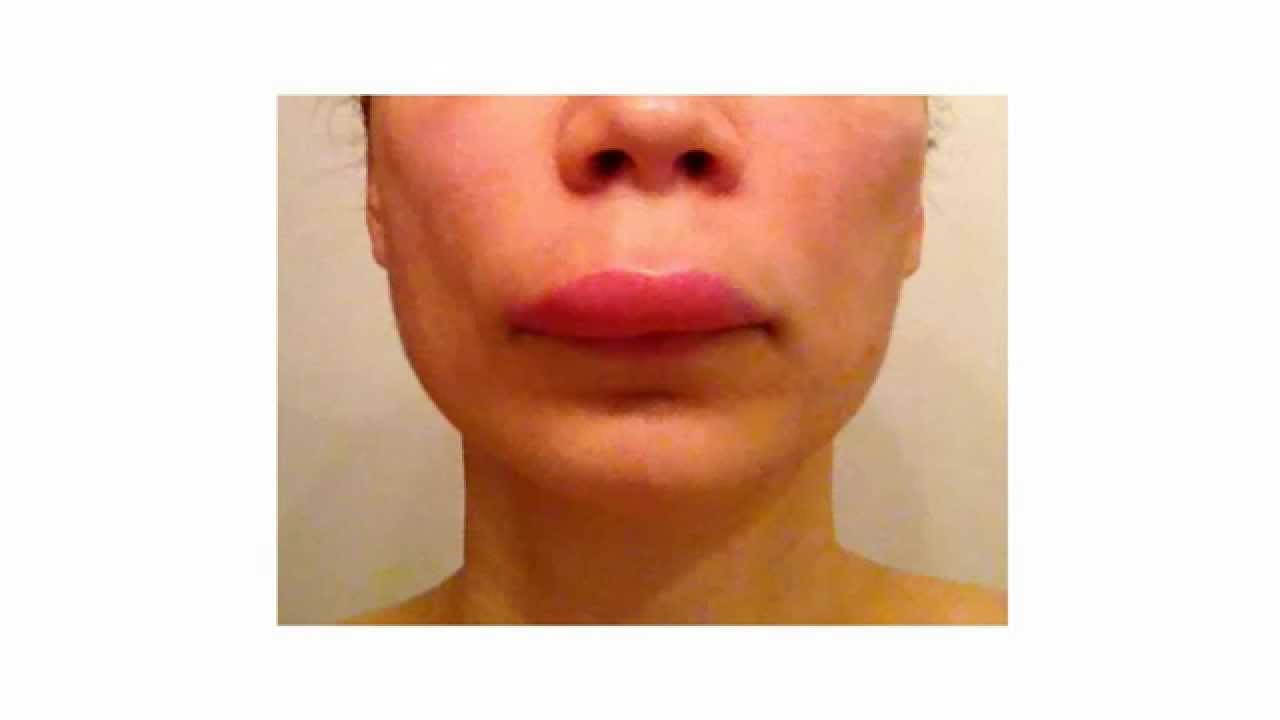 Angioedema And Hives Treatment Using Natural Home Remes Healthy T