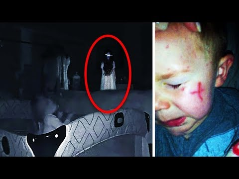 Weird Scratches Keep Appearing On Baby, Parents Check Baby Cam And See The Truth from YouTube · Duration:  5 minutes 2 seconds
