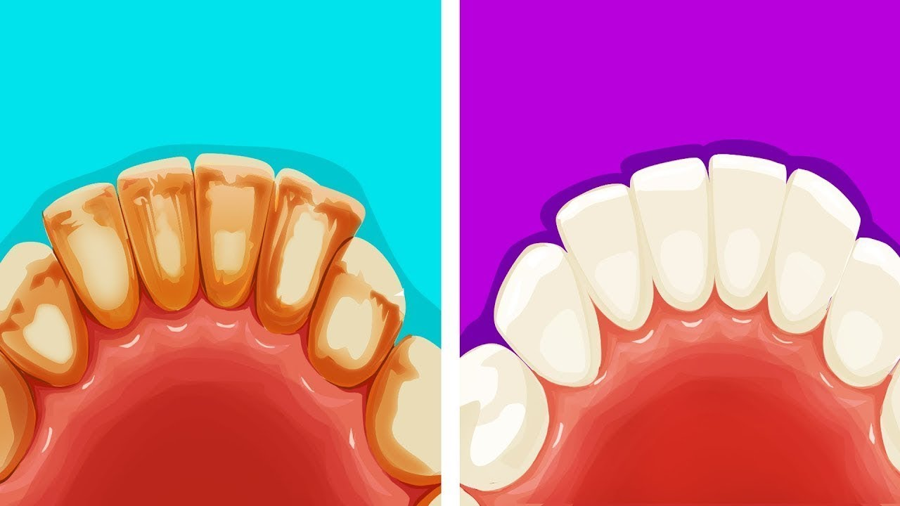 8 Maneras Eficientes De Remover La Placa Dental De Manera Natural Youtube
