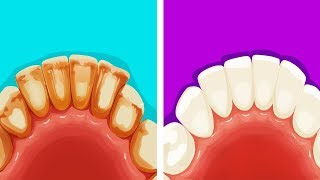 8 Maneras eficientes de remover la placa dental de manera natural
