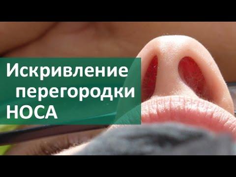 Кровь из носа. Причины и первая помощь - Поддержание