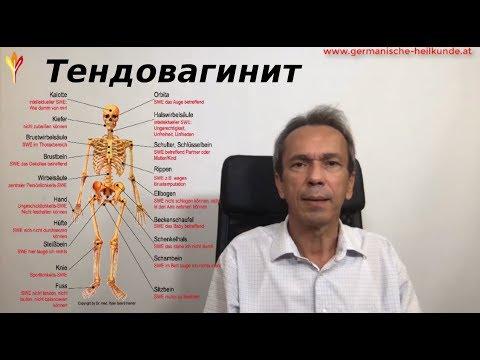 Тендовагинит. Воспаление сухожильных влагалищ.
