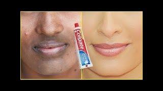 Comment supprimer les taches noires,les taches foncées et les cicatrices d'acné sur le visage en5min
