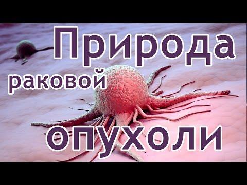 Опухоль — Википедия