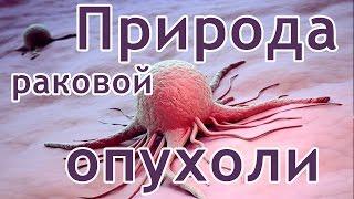 видео Онкология – опухоли – рак - Злокачественные опухоли мягких тканей