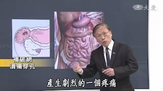 【大愛醫生館】20180816 - 補破網 潰瘍穿孔
