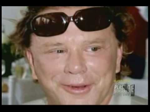 Mickey Rourke's Plastic Surgery