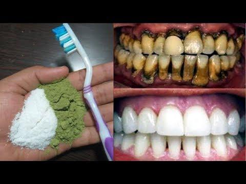 ا�رشي بها اسنانك دقيقتان 2 و انظري الى قوة تبييض الذي ستحصلين عليه كأن اسنانك حليب
