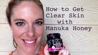 How to get Clear Skin with Manuka Honey!