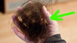Остановить ВЫПАДЕНИЕ ВОЛОС Помогут ЭТИ 2 Ингредиента ГУСТЫЕ КРАСИВЫЕ и ЗДОРОВЫЕ Волосы За КОПЕЙКИ