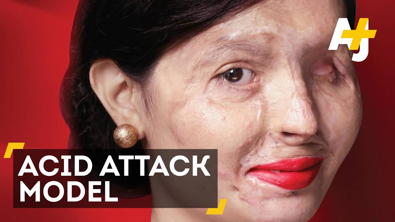 from acid attack to fashion model youtube