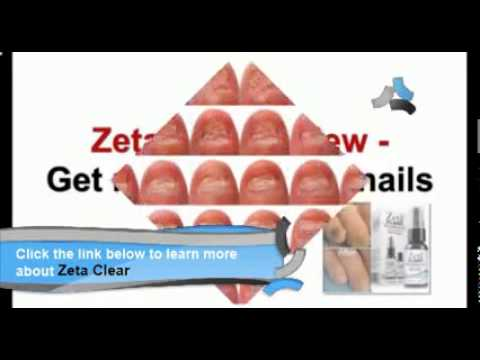 Dr g clear nail antifungal treatment reviews