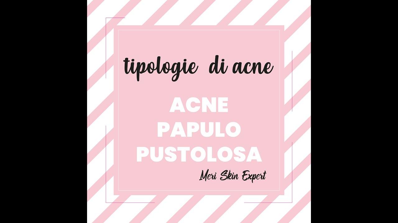 Che cos'è l'acne papulo pustolosa | Meri Skin Expert | Viva Benessere Torino