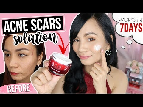 Effective Pimple Marks Solution Olay Skin Care Review For Acne