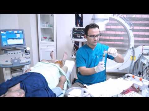 PRP Tedavisi - Ağrı Merkezi