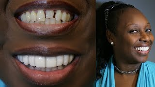 New CHALLENGE SMILE MAKEOVER- BRIGHTER IMAGE LAB -Must See Before and Afters!!