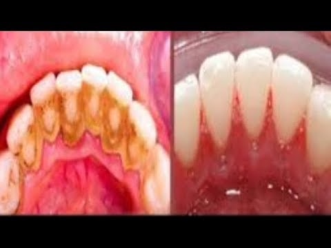 HOW TO REMOVE DENTAL PLAQUE IN 3 MINUTES AT HOME WITHOUT GOING TO THE DENTIST