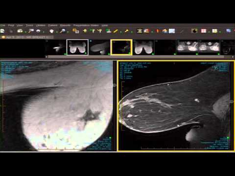 MRI Breast parenchymal evaluation thumbnail