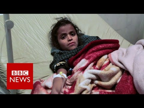 Yemen facing an 'unprecedented' outbreak of cholera - BBC Ne