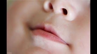 Penyebab Bibir Bayi Sering Mengelupas Dan Kering!!!