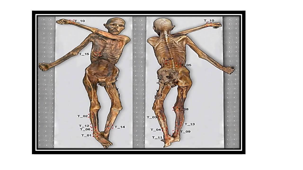 Ötzi 5,300-Year-Old Iceman Mummy Has 61 Tattoos - YouTube