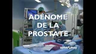 Repeat youtube video Adénome de la prostate - AP-HM août 2010