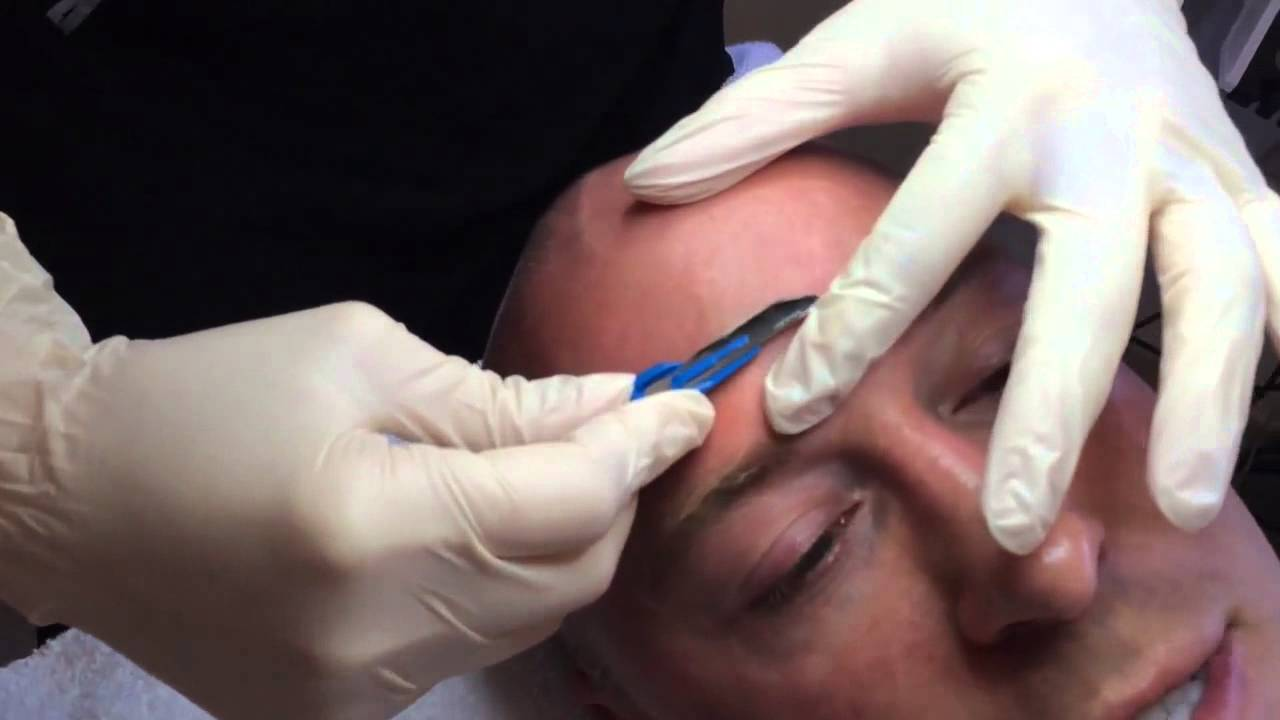 dr piazza gets dermaplaned in austin dr piazza gets dermaplaned in austin