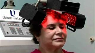 Laser Hair Replacement - How it works...