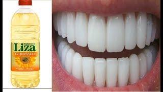 Meu amigo Dentista ME PASSOU ESSA DICA- Depois Disso Nunca Mais Tive Tártaro e Nem Dentes Amarelos