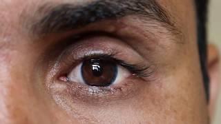 Artificial eye Movement
