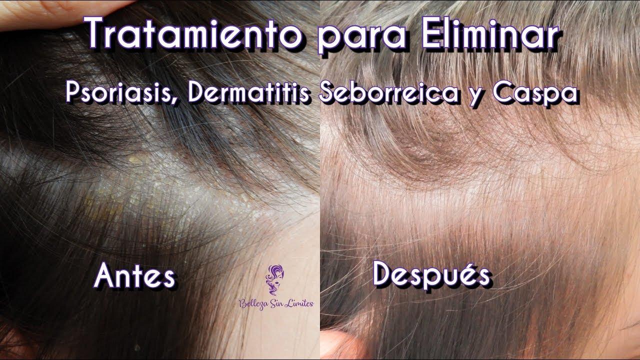 como tratar la dermatitis seborreica de forma natural