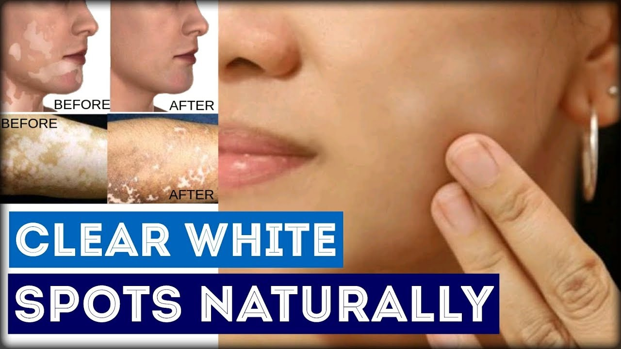 In hindi treatment home spots white on face at How To