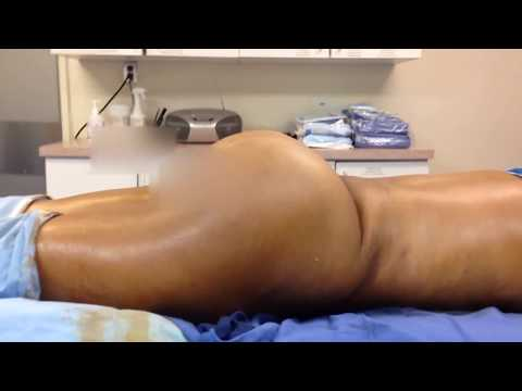 Brazilian Buttlift on 100 lb Woman: Fat Transfer for Thin Patients with Dr. Kenneth Hughes