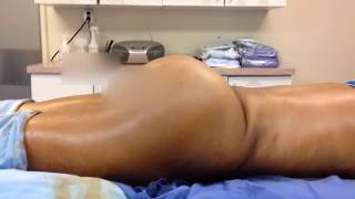 brazilian buttlift on 100 lb woman fat transfer for the athletic or thin patient with dr hughes