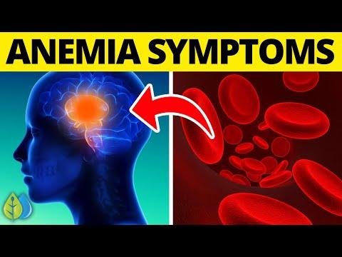 Iron Deficiency: Top 12 Iron Deficiency Anemia Symptoms