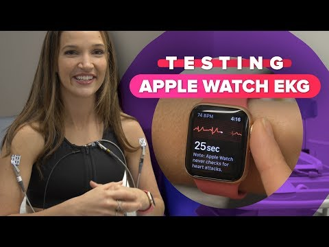 The Apple Watch ECG found something unexpected about my heart