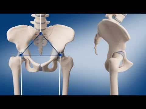 Individualized artificial hip joint (Doctors version english) - 3D Animation Medizin