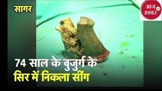 बूढे़ आदमी के सिर से निकला जानवरों जैसा सींग viral हो रहा यह video | Aaj Ki Khabar