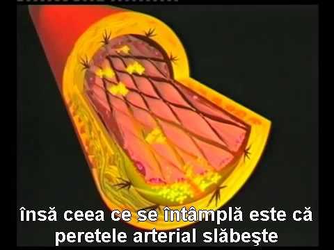O nouă perspectivă asupra bolilor cardiovasculare