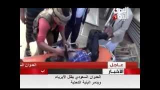العدوان السعودي يقتل الأبرياء ويدمر البنية التحتية