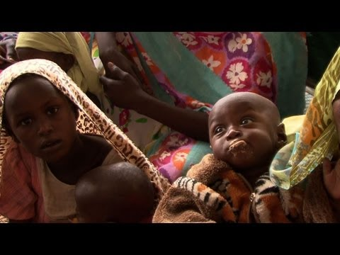 Child malnutrition rates remain alarming in Chad
