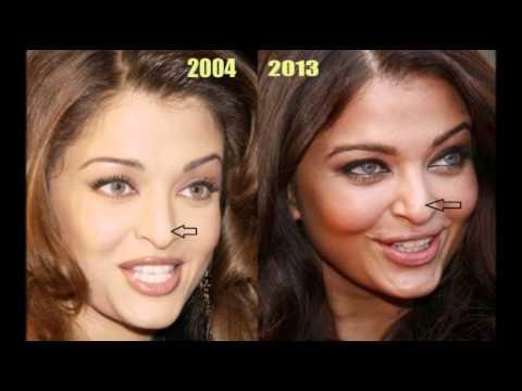 Айшвария Рай пластическая хирургия до и после