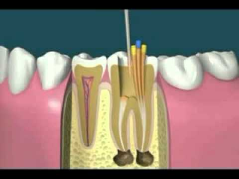 cracked front tooth root canal