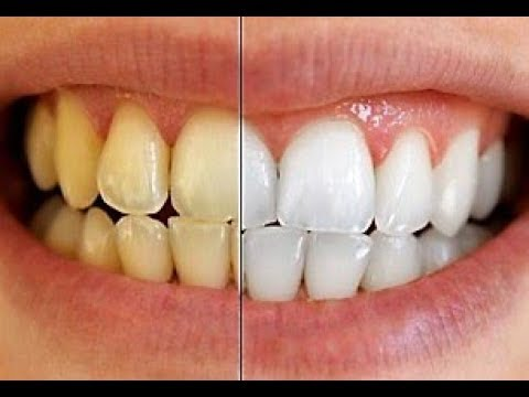 How To Teeth Whitening With Salt Teeth Whitening Home Remedy
