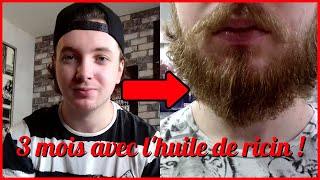 Faire pousser sa barbe avec l'huile de ricin ! (évolution avant/après)