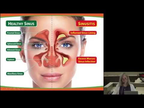 Evaluation and Management of Acute and Chronic Sinusitis